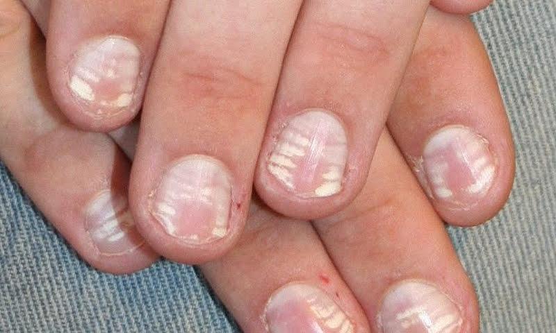 Белые пятна на ногтях.